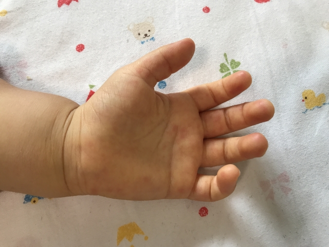 手足口病ってどんな症状?