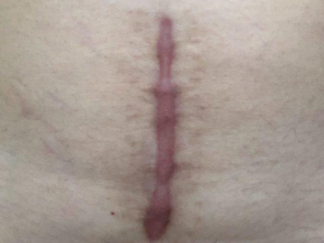 帝王切開の傷跡画像