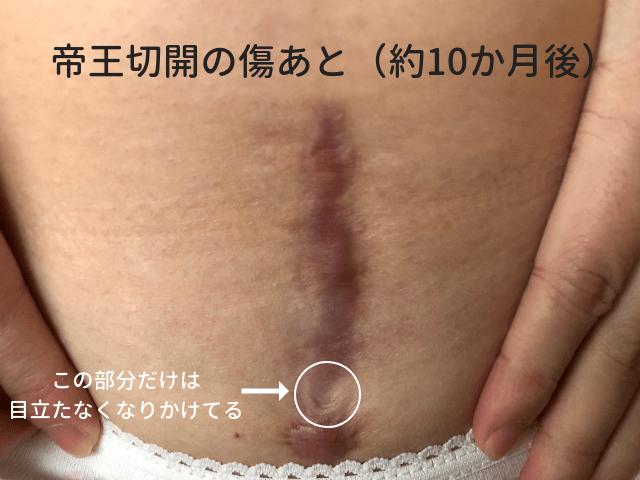 帝王切開の傷跡10か月後の画像